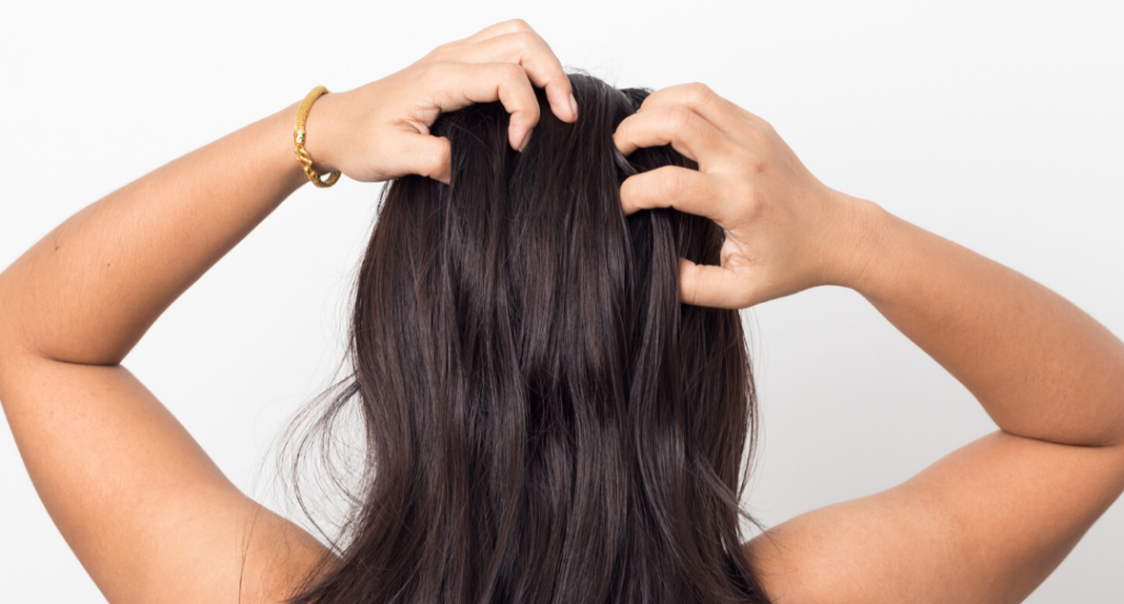 Dandruff: Causes and treatments
